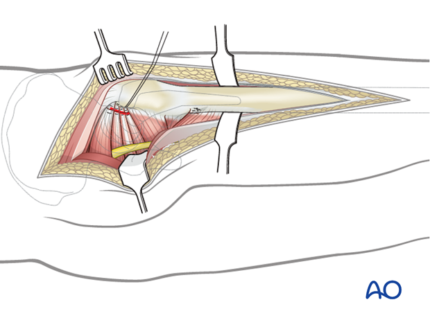 Distal extension to a Kocher-Langenbeck approach to the hip