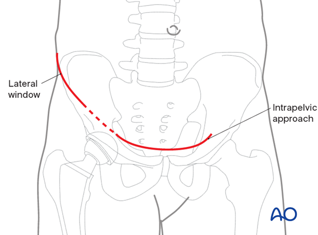Skin incision for an anterior intrapelvic approach