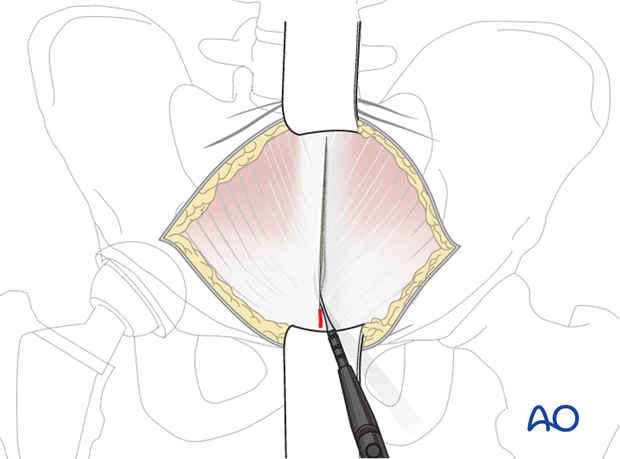 Superficial dissection for an anterior intrapelvic approach