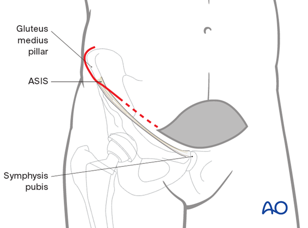 Additional lateral window in an anterior intrapelvic approach