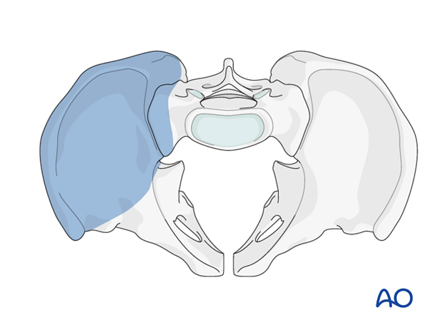 Lateral window exposure in an anterior intrapelvic approach