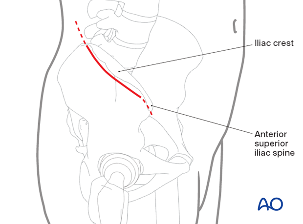 Lateral window skin incision in an anterior intrapelvic approach