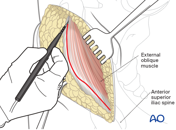 Lateral window superficial dissection in an anterior intrapelvic approach