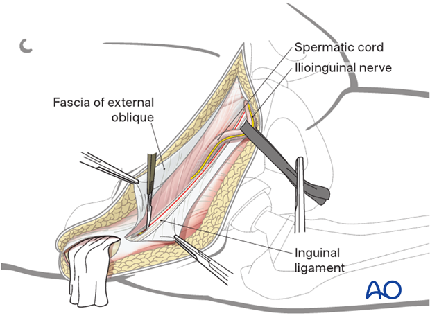 Release of the muscular attachment from the inguinal ligament