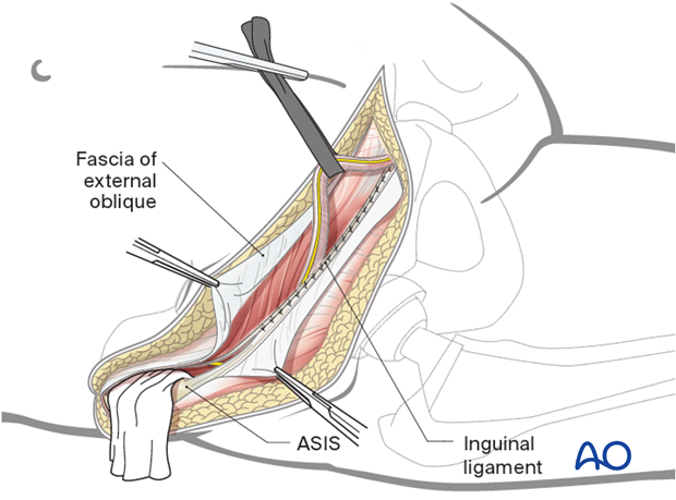 Wound closure for the ilioinguinal approach