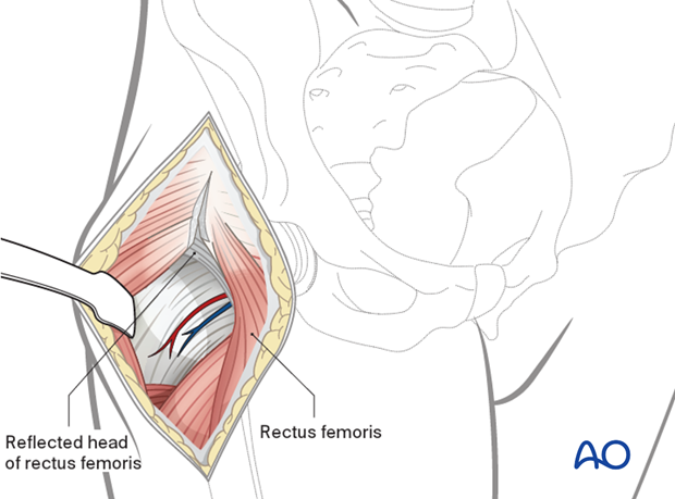 Opening of the fascia overlying the rectus