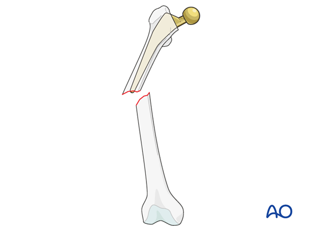 Vancouver B1 femoral fracture