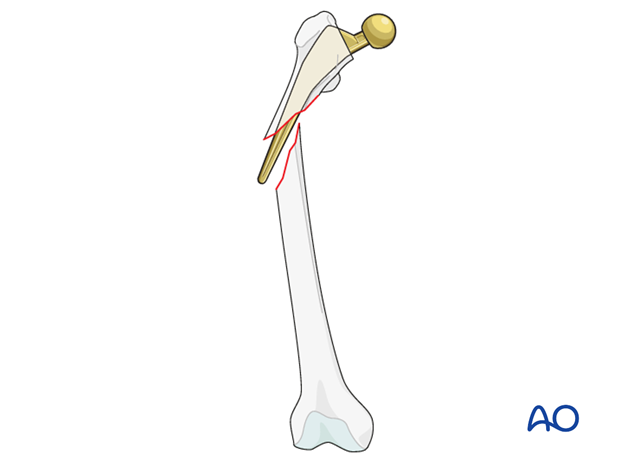 Vancouver B2 femoral fracture