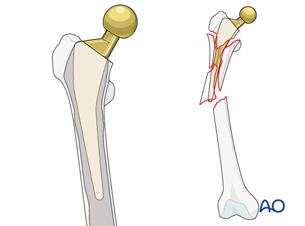 Comminution in the proximal femur fragment