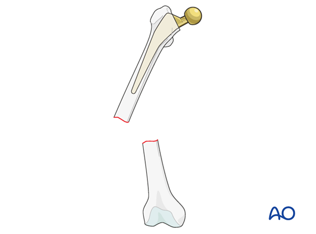 Vancouver C femoral fracture