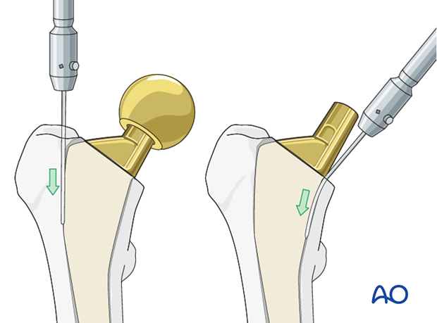 Stem removal with a flexible osteotome