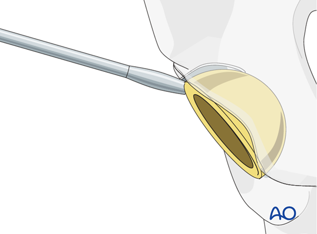 Acetabular component removal