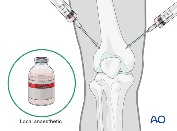 Anesthesia for distal femur pin traction
