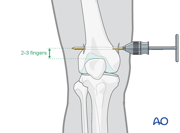 Pin insertion for distal femur traction