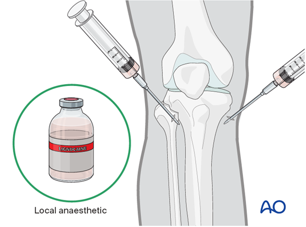Anesthesia for tibial pin traction