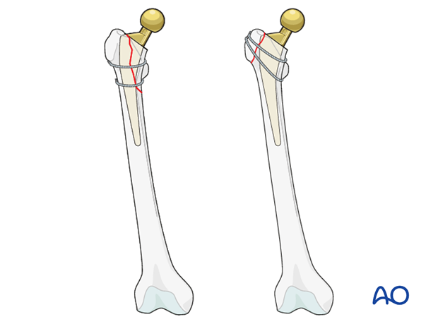 Isolated cerclage in a periprosthetic femoral fracture with a stable prosthesis