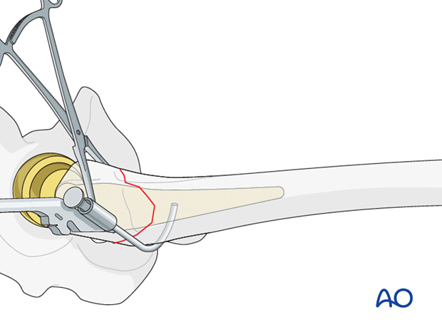 Cable/wire positioning for greater trochanteric fractures