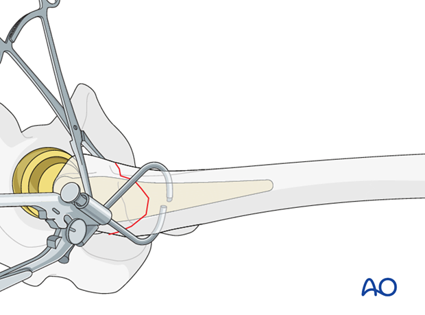 Male component insertion