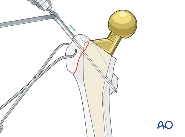K-wire insertion for tension band to stabilize greater trochanteric periprosthetic fractures