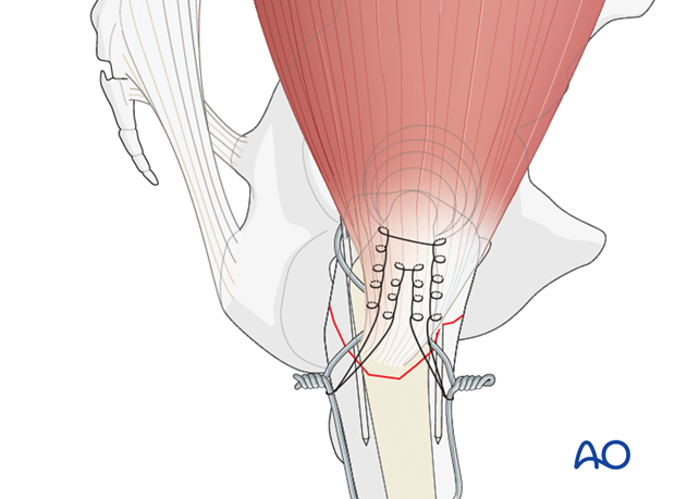 Supporting stiches for tension band wiring in hip periprosthetic fractures