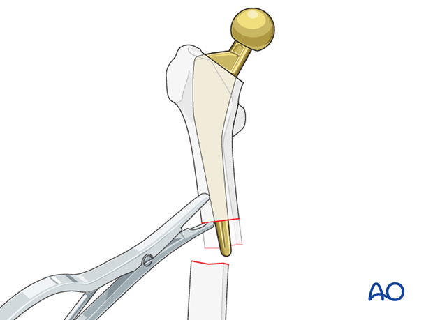 Bone is removed from the tip of the stem