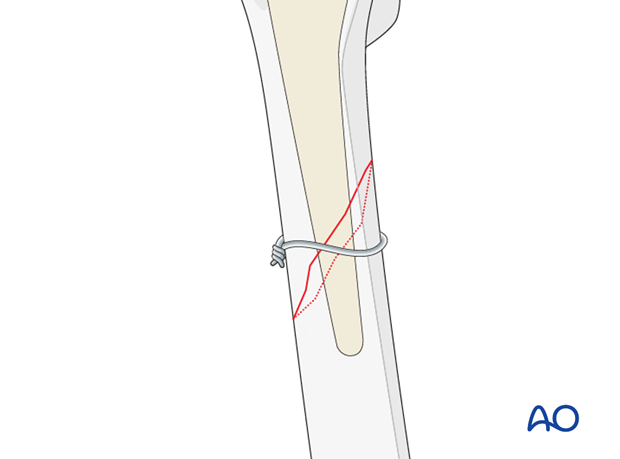 Provisional wire stabilization for short oblique fracture