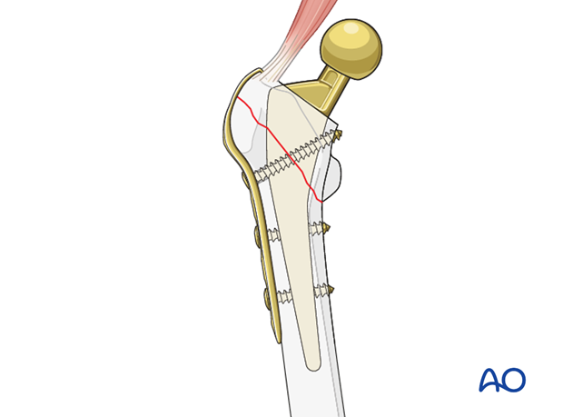 Small screw lag fixation around the femoral stem