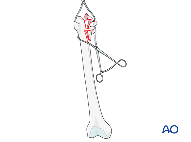 Femoral reduction