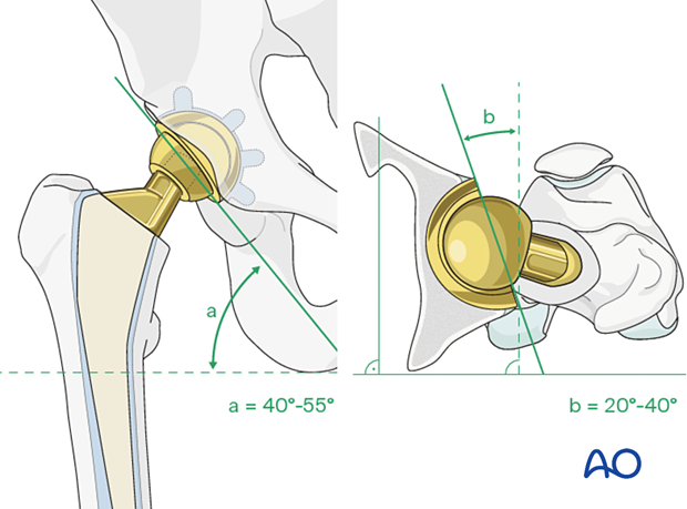Acetabular cup assessment