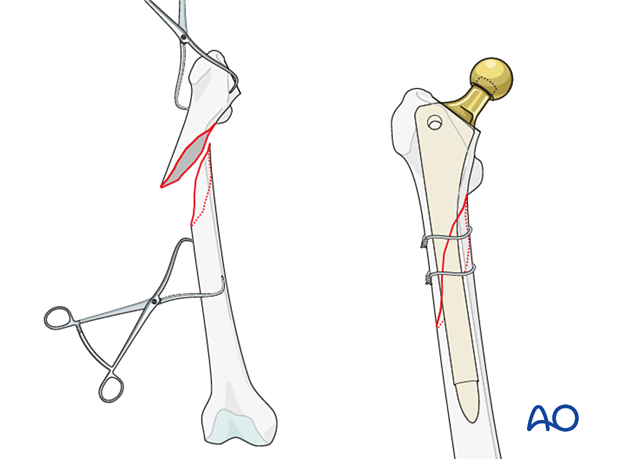 Provisional fixation of the fracture