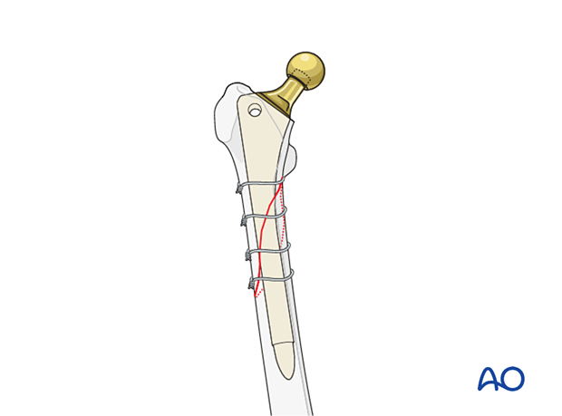 Diaphyseal fixation using long cylindrical stem