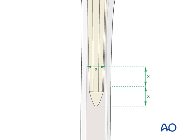 Femoral implant selection