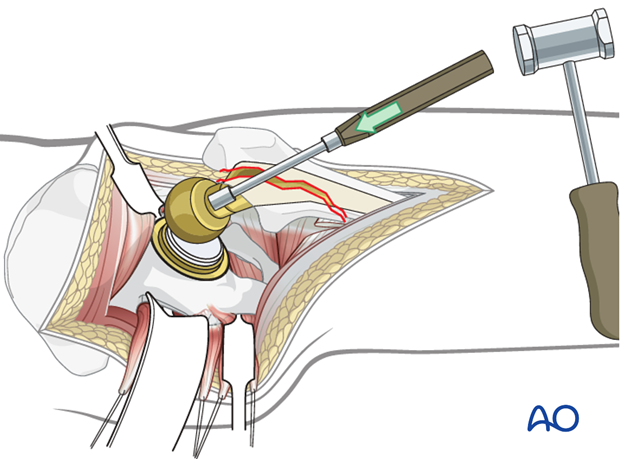 Disengage the femoral head from the Morse taper of the femoral prosthesis