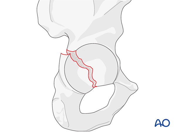 Posterior wall and column fracture
