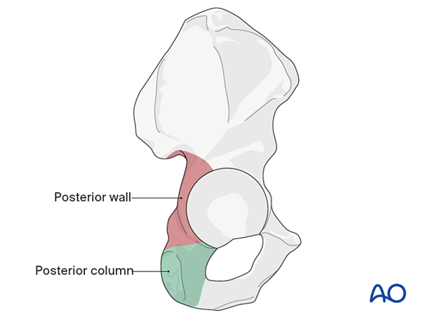 Anatomy of the posterior moiety of the acetabulum