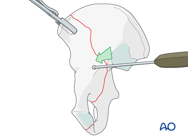 Reduction of the anterior aspect of the joint
