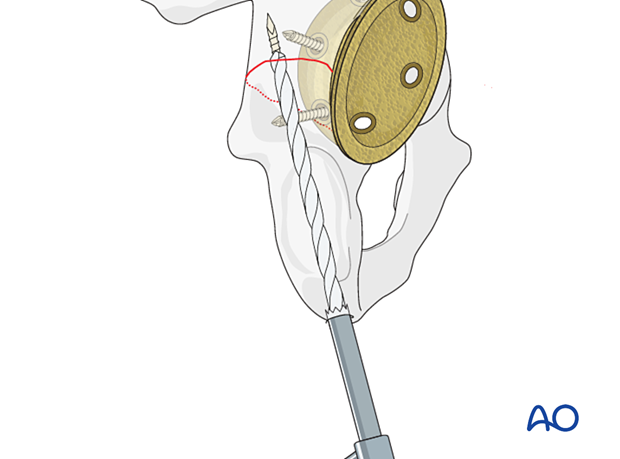 Drilling the entry point of the posterior column