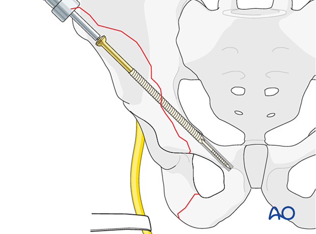 The screw is inserted over the guidewire