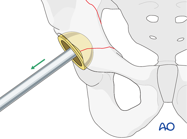 Acetabular component removal for a fracture occurred during cup insertion