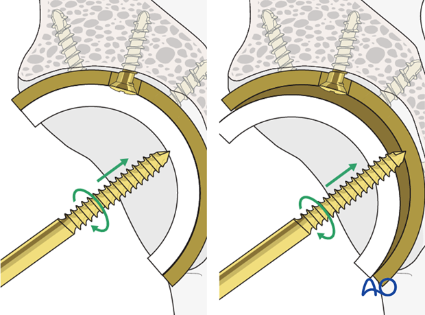 Polyethylene component removal from an acetabular cup