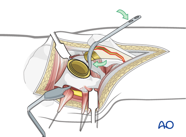 Exposure of the acetabular component