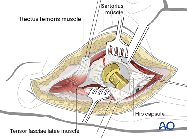 Anterior approach extension