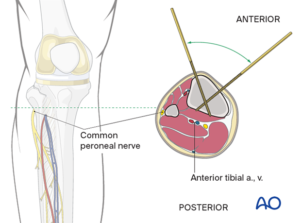 Distal of the tibial tuberosity