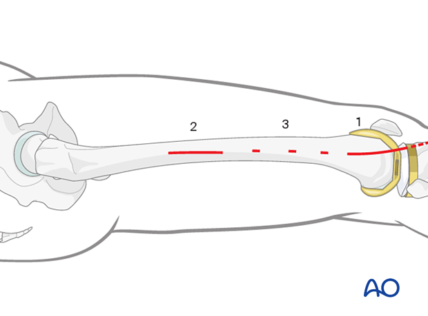 Minimally invasive plate osteosynthesis (MIO) approach to the distal femur from lateral/anterolateral