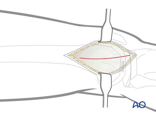 Divide the iliotibial band in line with the skin incision