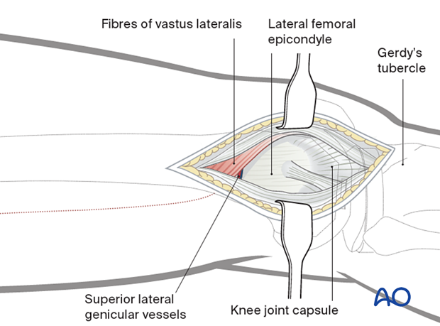 In the MIO approach the vastus lateralis is left generally undisturbed