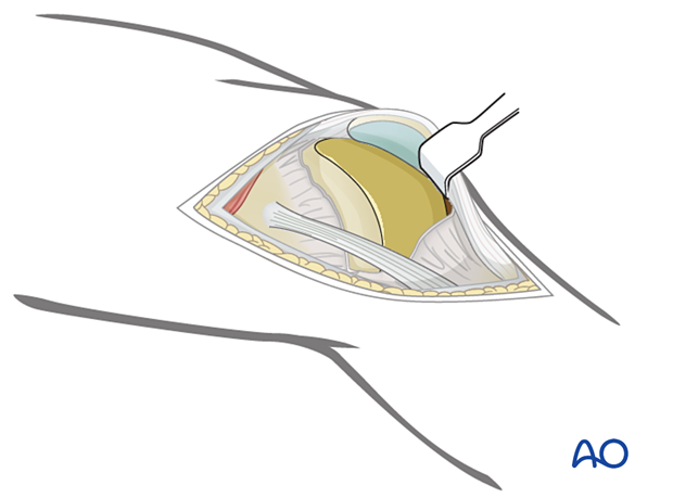 Distally, incise the joint capsule over the anterior third of the lateral femoral condyle