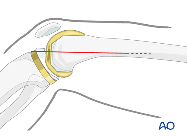 Skin incision made in the line of the tendon of adductor magnus