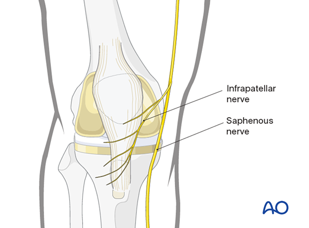 The saphenous nerve runs along the medial aspect of the distal femur