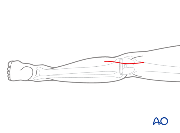 A330 Posteromedial approach proximal tibia